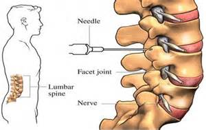 cervical and lumbar facet joint blocks picture 1