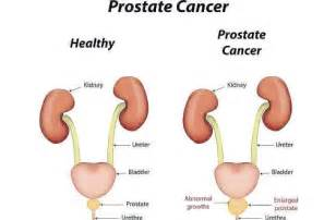 What is stage8 in prostate cancer picture 14