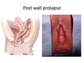 uterine prolapse care plan picture 5