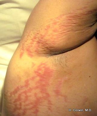 stretch marks on arms picture 14