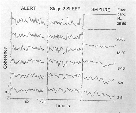 convulsions during sleep picture 17