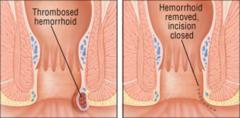 fat burners cause internal hemorrhoid picture 5