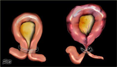 intestinal ischemia and endometriosis picture 2