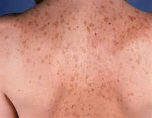 skin pigment disorders picture 11