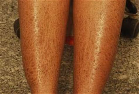dry skin on legs picture 6