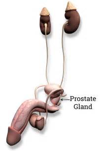 Is taking out the prostate a must for picture 1
