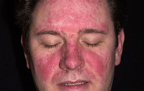 Causes severe acne picture 13
