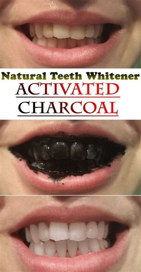 baking soda and peroxide to whiten teeth picture 6