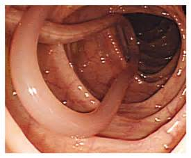 symptoms of worms in els picture 7