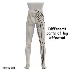 are side sches & leg cramps symptoms of picture 19