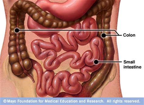 blocked colon symptoms picture 2