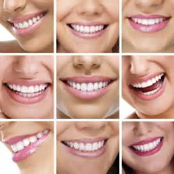 walnut creek teeth whitening picture 21