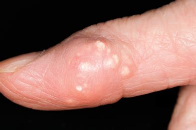 gout in a thumb joint picture 2