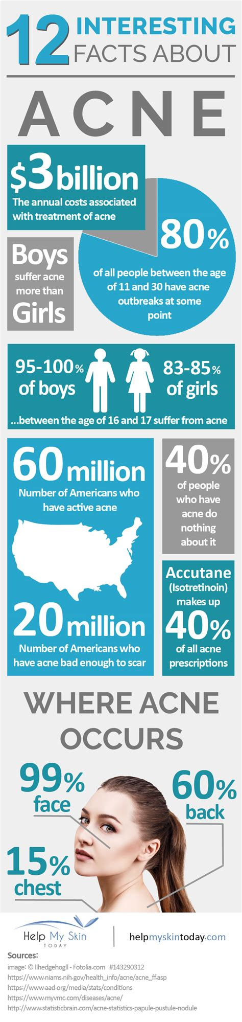 interesting facts about acne picture 3
