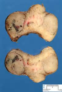 hashimoto disease and thyroid nodules picture 1