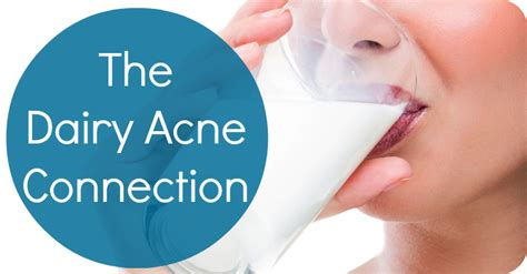 dairy acne picture 2