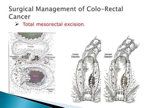 eztodecttest for colon cancer picture 2