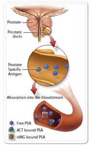 Prostate psa test picture 5