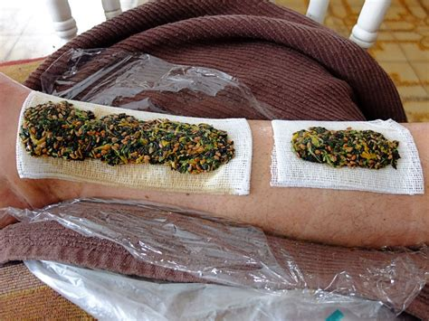 herbal poultice picture 3