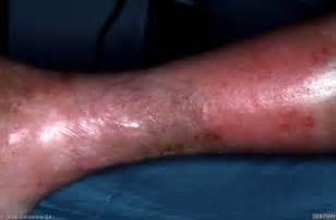 cellulites picture 7