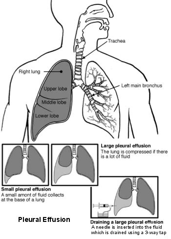 natural remedies to reduce pleural fluid picture 14