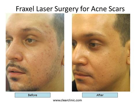 acne treatment laser picture 6