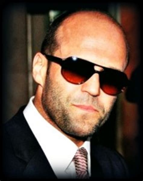 increased testosterone baldness picture 7