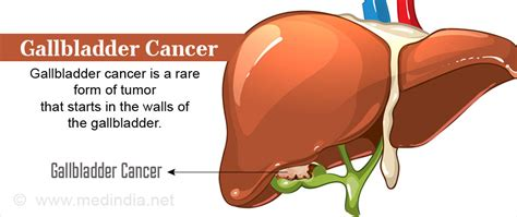 symptoms of gall bladder with gangrene infection picture 2