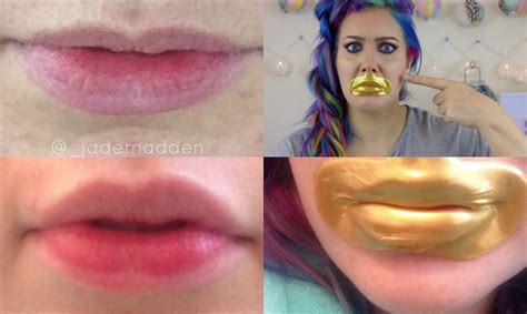 collagen lips picture 5