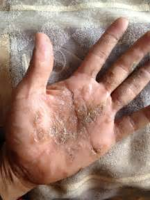bacterial infection on palm of hand picture 15