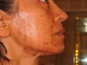 laser treatment for face day after looks like picture 5