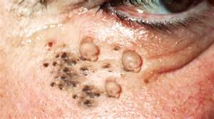 boils and cysts picture 10