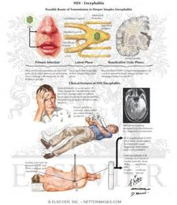 herpes encephalitis picture 9