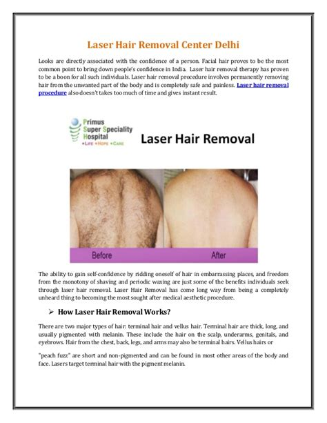 laser hair removal pearls picture 9