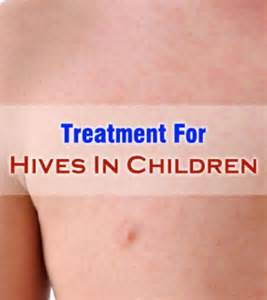 hives medication picture 11