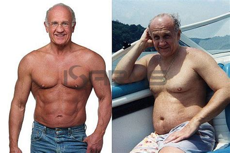 testosterone replacement therapy gynecomastia picture 14