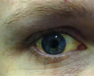 eye redness and liver cancer picture 18