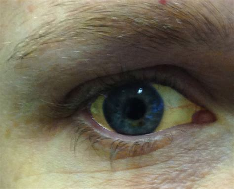 liver and eye s picture 10