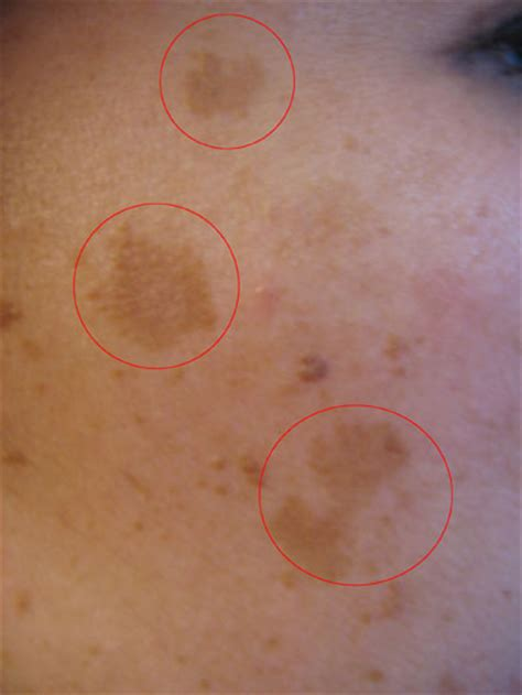 skin tags on vagina during pregnancy picture 1