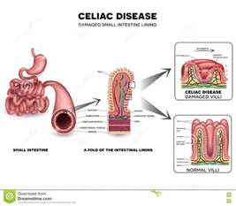 small intestine disorders symptoms picture 9