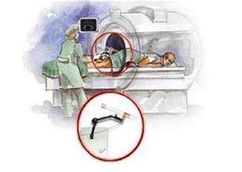 prostate milking procedure picture 7
