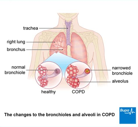 can you get chronic bronchitis if you don't smoke picture 4