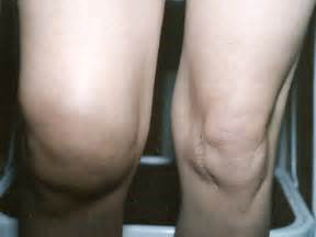 swollen knee joint picture 3