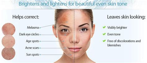 anti aging solution to melasma skin picture 6