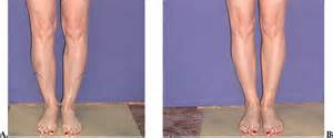 fat transfer to legs picture 10