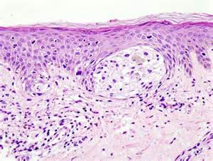 irregular cells in skin picture 1