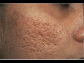 cover acne pit scar skin picture 7