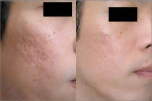 needling for acne scarring picture 7