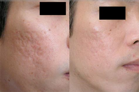 acne dermafillers picture 2