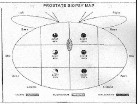 Falsified prostate cancer biopsy report picture 7